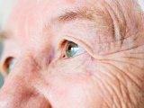 Fokozódó látásromlás, torz látás, szemfájdalom - Erre a súlyos rákbetegségre is utalhatnak a tünetek! - Mit kell tudni a szem melanómájáról?
