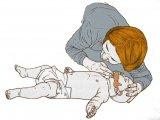 Újraélesztés menete babáknál, kisgyermekeknél: ezt kell tenned lépésről lépésre - Videós útmutató