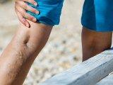 Visszér, lábdagadás okai, megelőzése - Mit tehetsz, hogy enyhüljenek a tünetek? Milyen súlyos betegséghez vezethet a visszérprobléma?