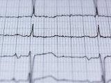 Kevesebb nő halna meg szívroham miatt, ha ugyanazt a kezelést kapnák, mint a férfiak - Kutatási eredmény