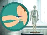 Elhízás ellen: Tényleg hatékony fogyókúrás módszer az akupunktúra?