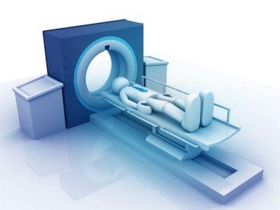 A CT-vizsgálat hatása a szervezetre: így károsodhat a sugárzás miatt