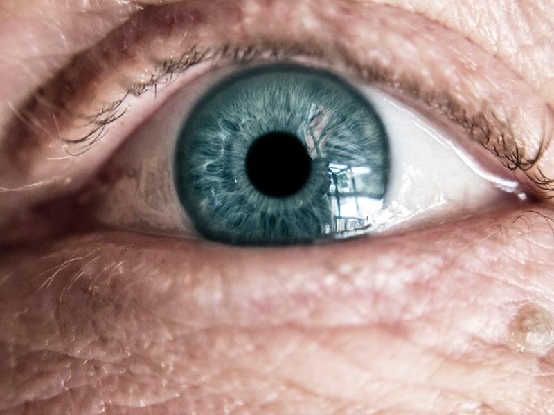 Szemviszketés, homályos látás, gyulladt szem esetén - 8 étel, amit fogyassz minél gyakrabban!