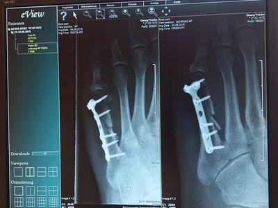 Csontritkulás oka, tünetei és kezelése