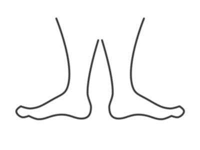 Percenként három lábat amputálnak a diabétesz egyik gyakori szövődménye miatt! - A neuropáthia tünetei, kezelése