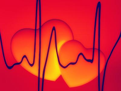 Vese világnapja: Súlyos szív- és érrendszeri problémákhoz vezethet a vesebetegség - Miért alakul ki? Mit tehetsz, hogy megelőzd?