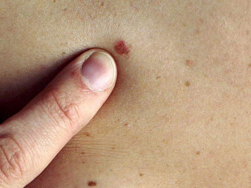 Melanóma kialakulása, tünetei, kezelése - Mit tehetsz, hogy elkerüld a bőrrákot? Szakorvos válaszol