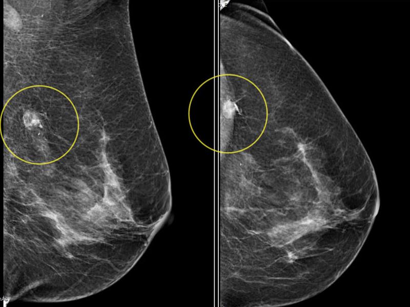 Megdöbbentő kutatási eredmény: visszatérhet a mellrák, akár 15 év tünetmentesség után is! - Mit tehetsz ellene?