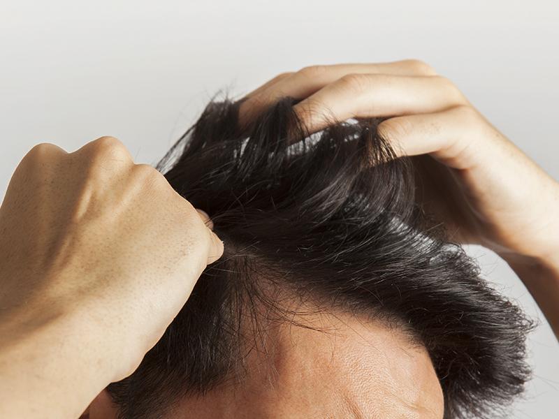 Véletlenül fedezték fel a tudósok a kopaszodás ellenszerét! Hatékony megoldás lehet a hajhullás kezelésére