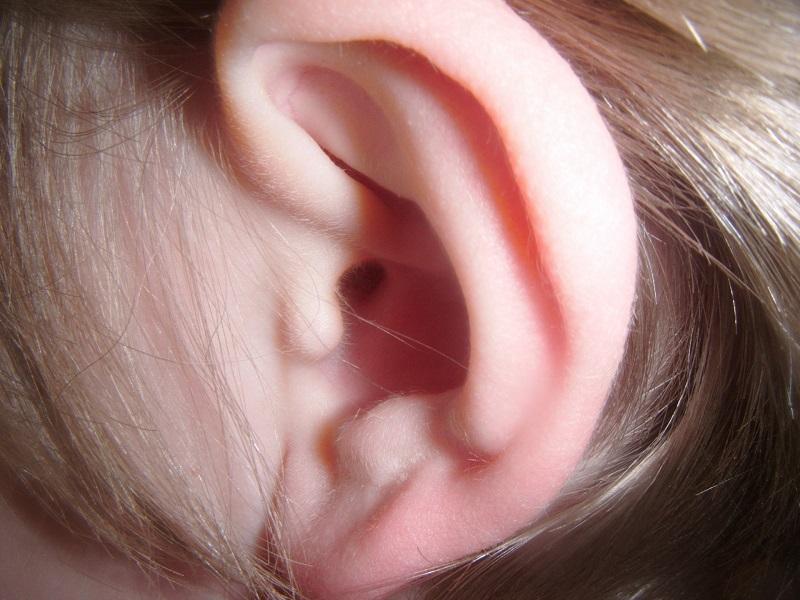 5 házi módszer a fülfájás enyhítésre - Ezeket próbáld ki, mielőtt elmész az orvoshoz!