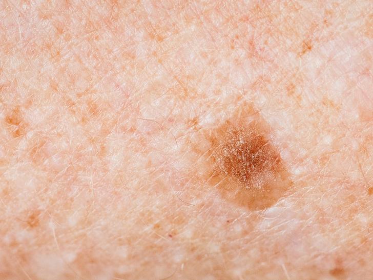 Melanoma tünetei, megelőzése - Az egyik legagresszívabb daganattípus, ezért fontos a korai felismerés