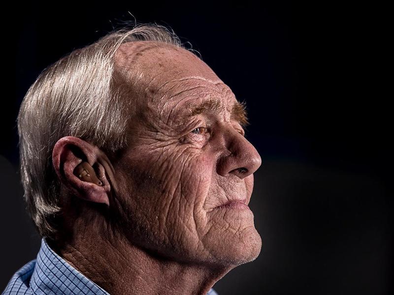 Hajbeültetés 50 éves kor felett