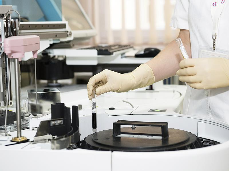 Hemokromatózis tünetei, szövődményei: Miért okozhat gondot, ha túl sok a vas a szervezetben?