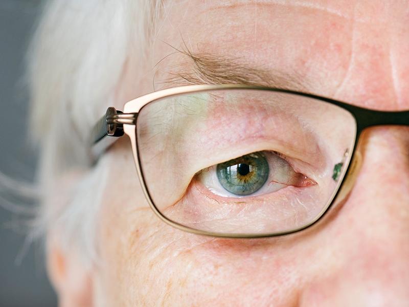 Látás hónapja: Ezért fontos a szemészeti szűrés 50 éves kor felett! - Akár meg is vakulhatsz, ha elhanyagolod a szembetegségeket