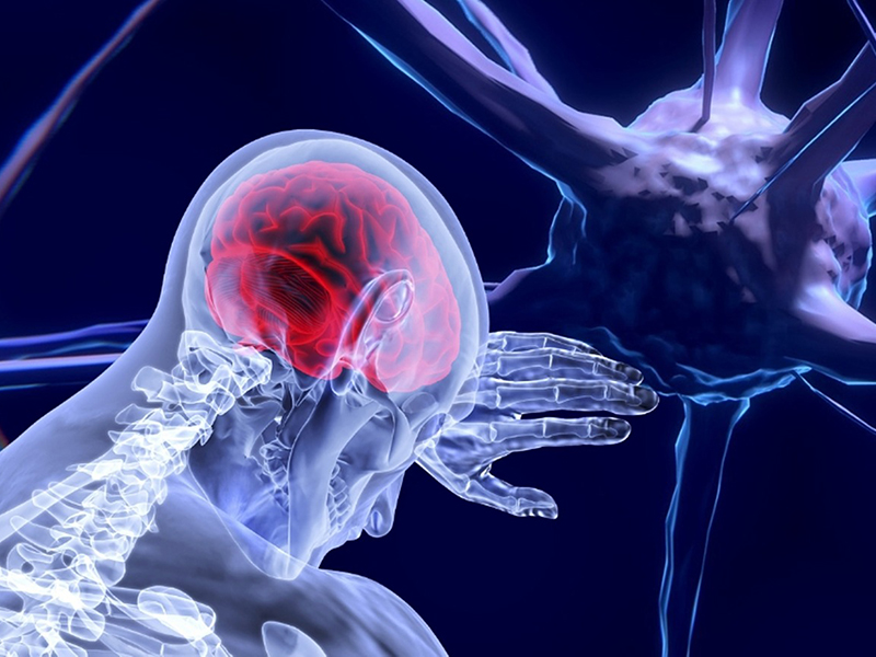 Stroke tünetei: Miért olyan nehéz felismerni a betegséget? - Ezeknél a jeleknél azonnal hívd a mentőt!