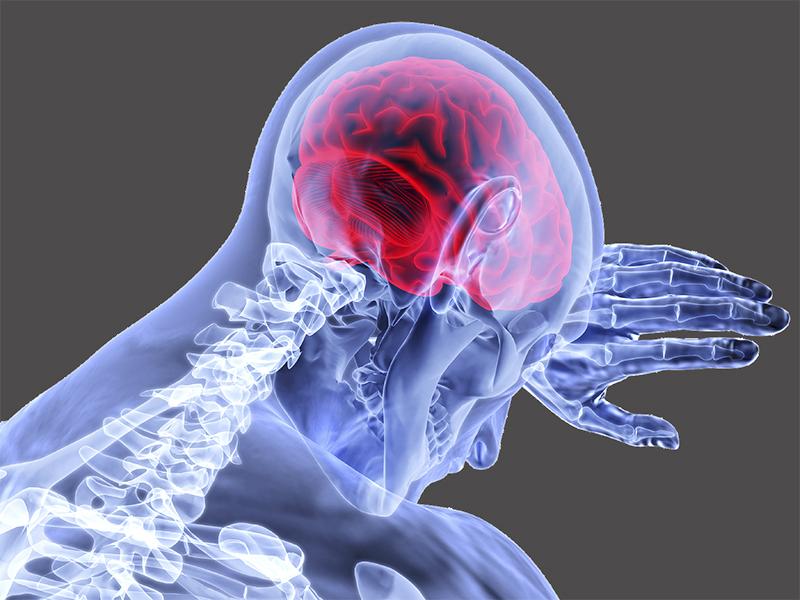 Stroke okai: Így befolyásolja a stroke rizikóját, hogy mennyire zajos környezetben élsz