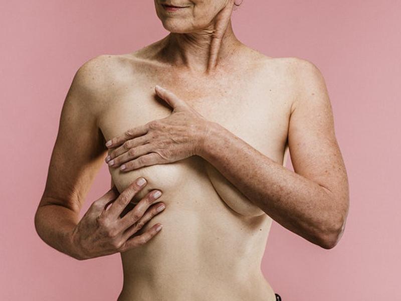 12 tévhit a mellrákkal kapcsolatban: Okai, tünetei, megelőzése, mammográfia - Milyen gyakran járj szűrésre?
